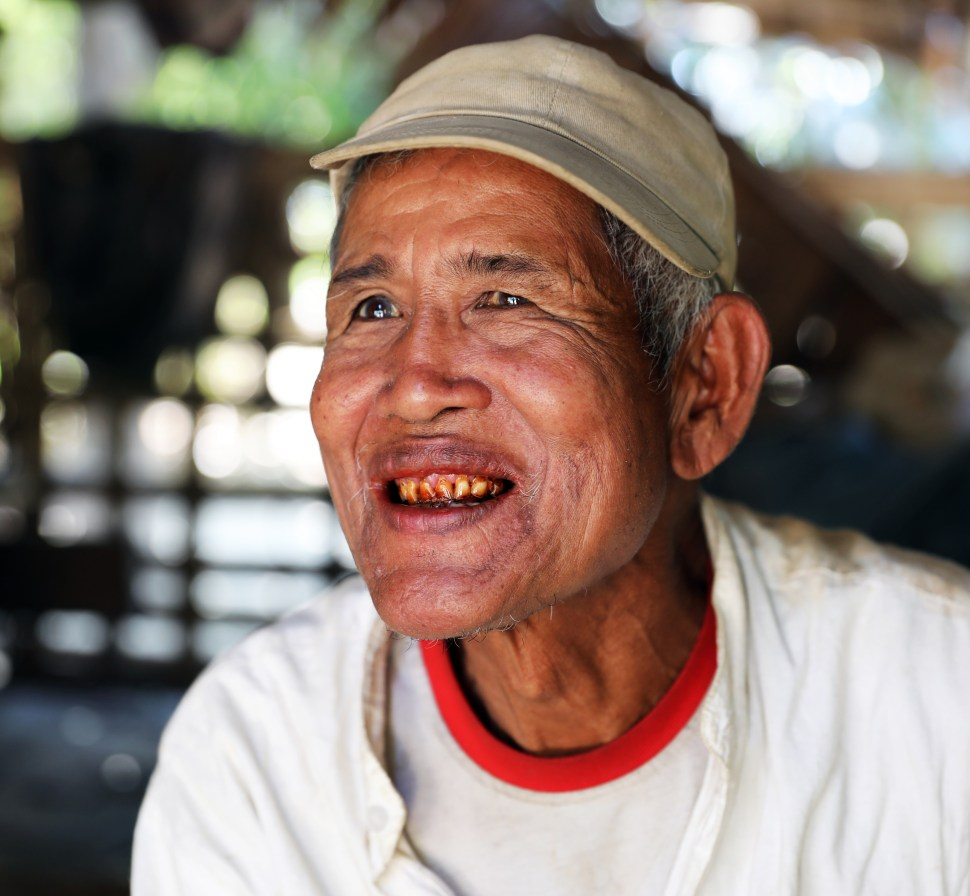 The effect of Betel nut on teeth